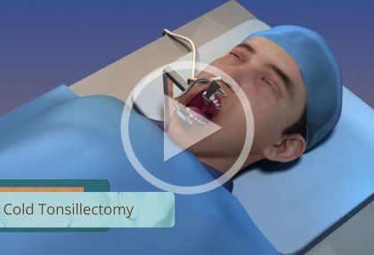 Tonsillectomy: The Procedure