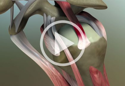 Rotator Cuff Surgery: Introduction